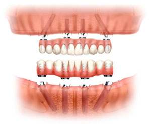 Dr. Mika - Dental Implants
